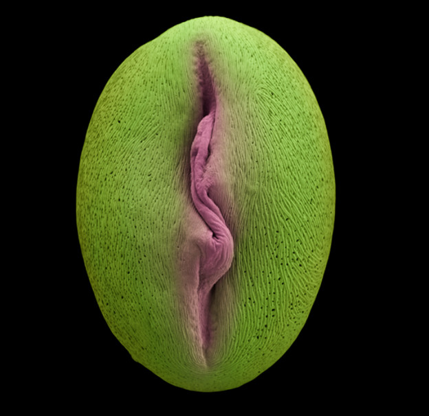 Cydonia oblonga – Quince, Pollen, 2009. Hand coloured micrograph.  Image from The Bizarre and Incredible World of Plants, Wolfgang Stuppy, Rob Kesseler & Madeline Harley, Papadakis Publisher