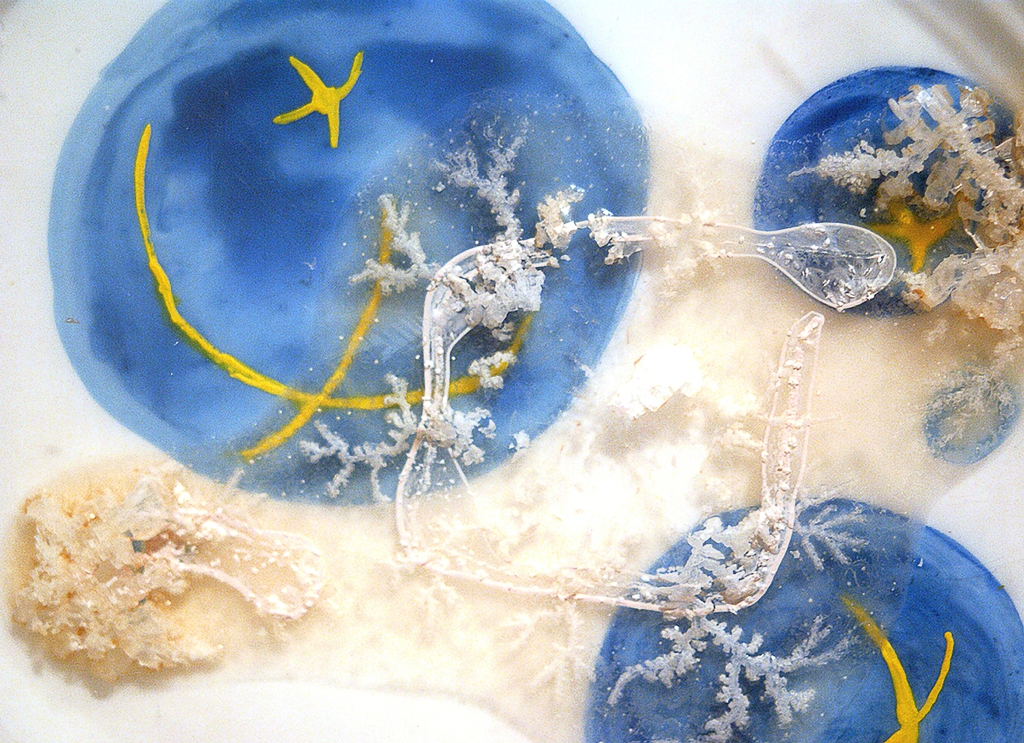 Elaine Whittaker: Painted Microbes-Cryptosporidium