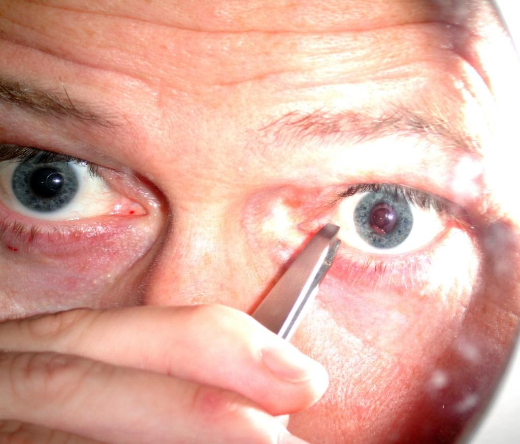 a mote eye