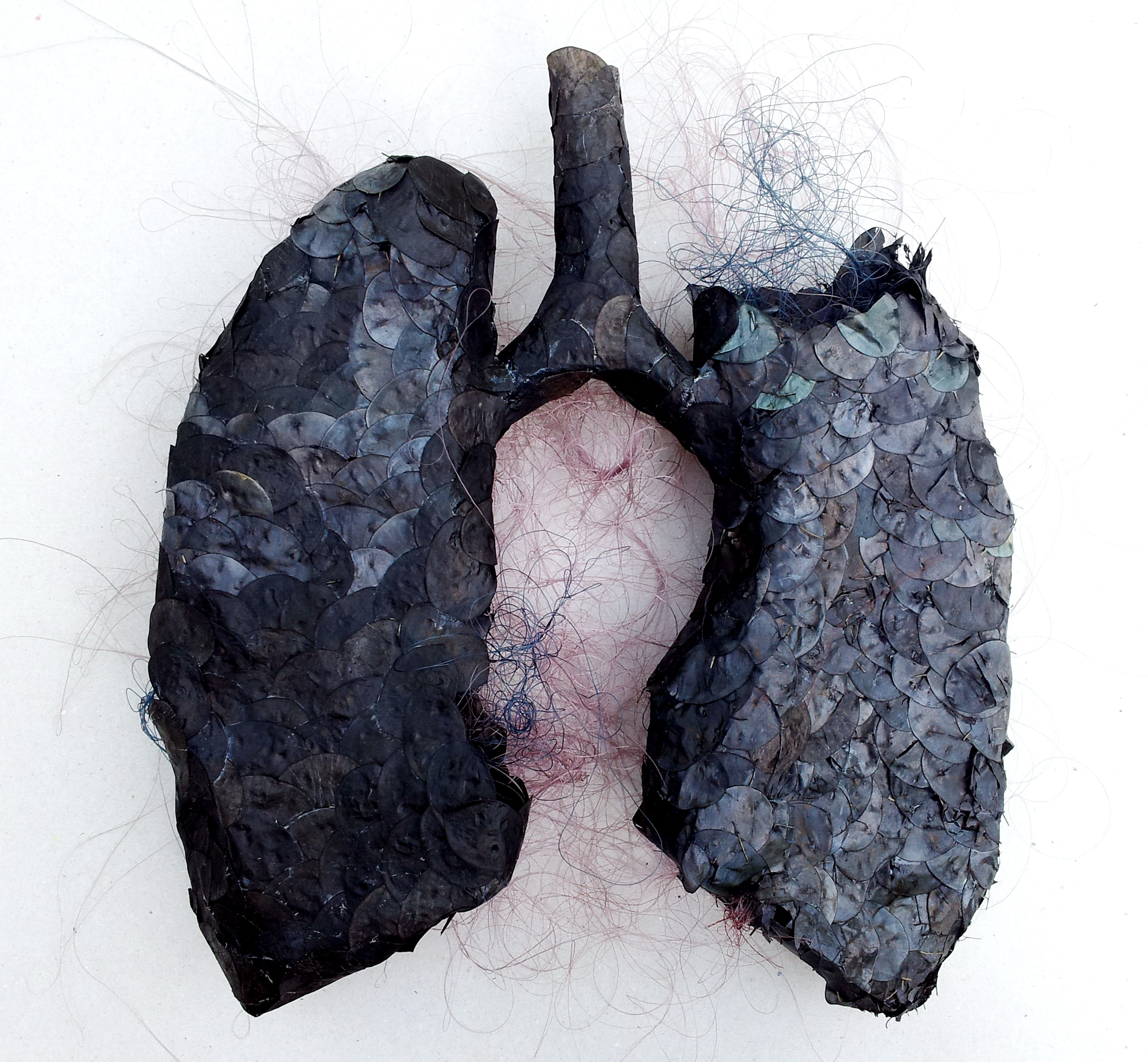 12 Black Anatomy Lungs In Memory Of My Father 2013 1 Interalia