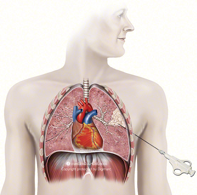 Heart Lung Anatomy Biopsy Interalia Magazine