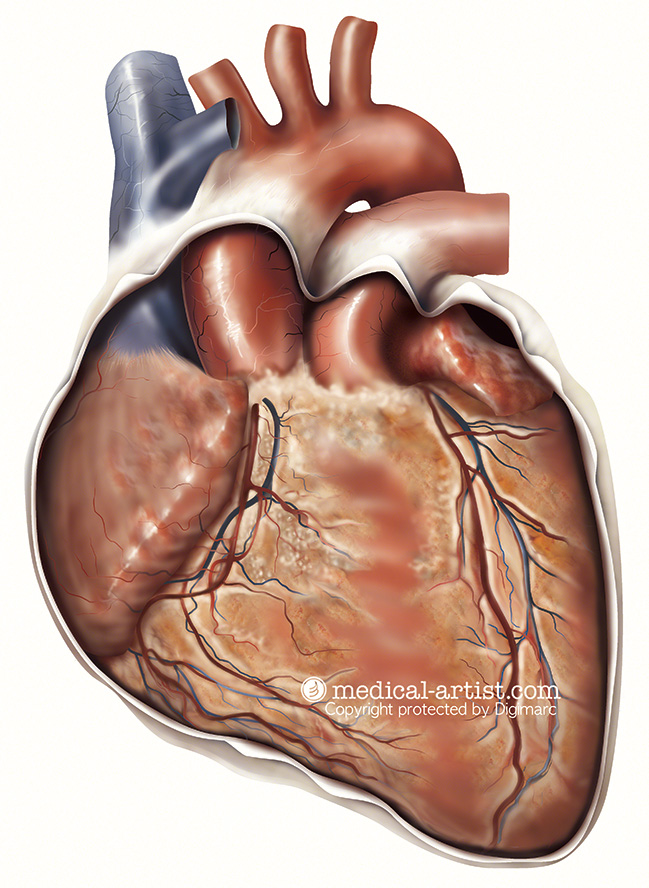Heart-sternocostal-surface