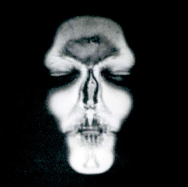 MRI-Self-Portrait