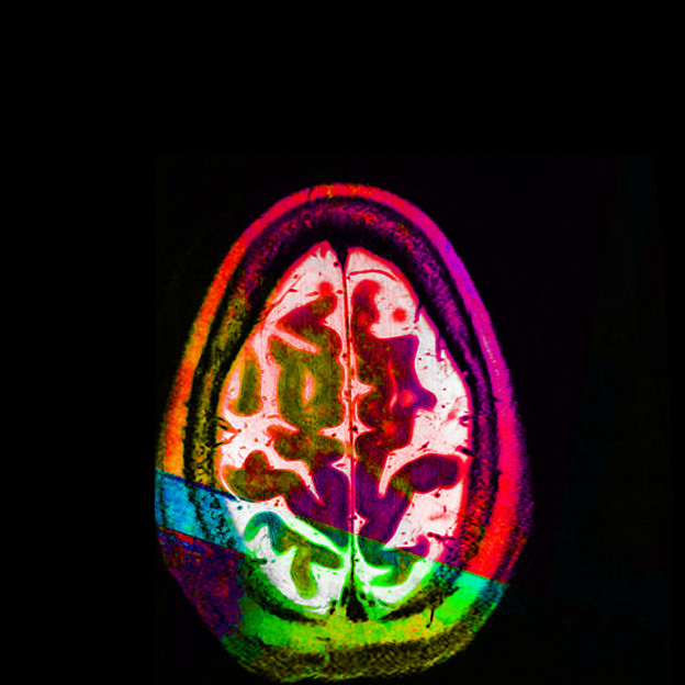 "Elizabeth Jameson: ""Good Egg"" (or an axial MRI view of the artist's brain)."