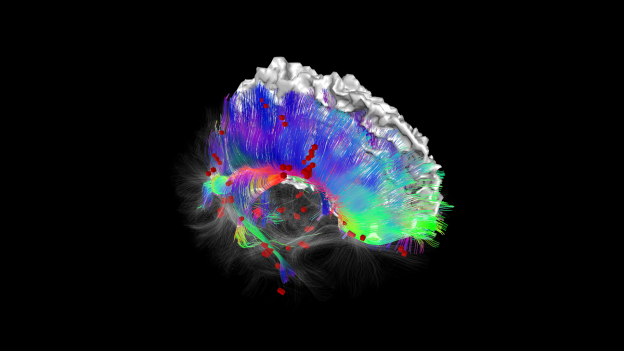 The MS connectome:  Shows the brain of a patient with Multiple Sclerosis, where the white matter tracts have damage lesions, displayed as red boxes.