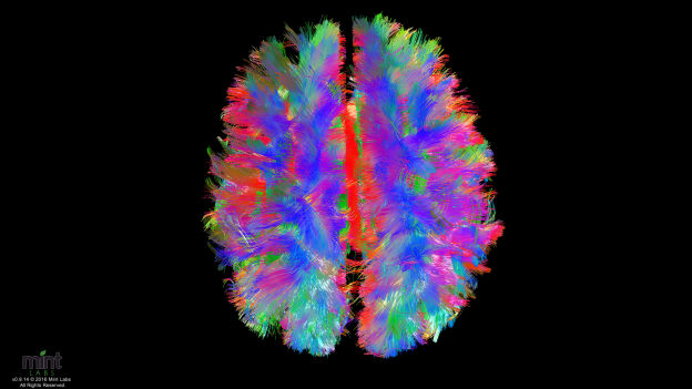 Healthy Brain: Shows the 3d maps where the white matter tracts are shown in color, representing the direction of that connection (red left-right of the brain, green front-back of the brain, blue up-down of the brain).